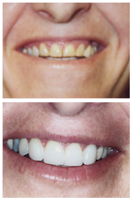 Treatment zoom teeth whitening in Lancaster CA